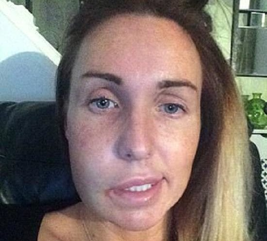 Woman Gets $15,000 After Tooth Extraction Gives Her Crooked Smile